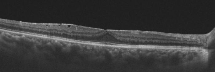 profil oct d'une membrane epimaculaire