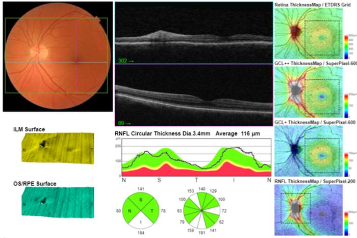 examen oct nerf optique et macula