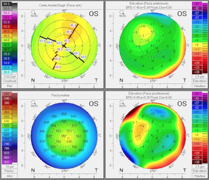 topographie de la cornee avant orthokeratologie